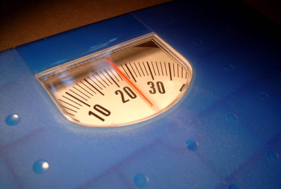 Cas Clinique Février-Mai 2013 : Patiente G , 23 ans diagnostiquée anorexique